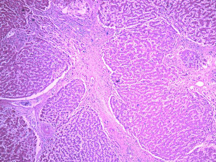 Damaged liver tissue due to cirrhosis   Image: Yale