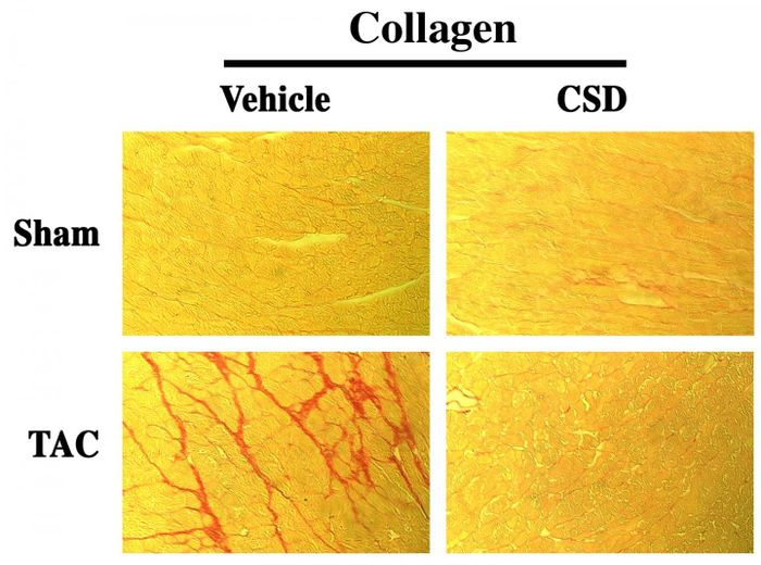 Caveolin-1 scaffolding domain (CSD) peptide reverses collagen accumulation in pressure overloaded (TAC) myocardium. Source: Dr. Hoffman and Dr. Kuppuswamy from a figure published in Laboratory Investigation