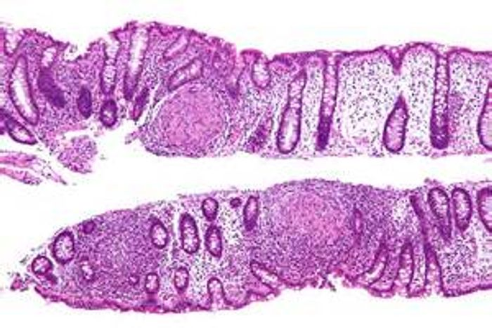 A colon showing intermediate magnification micrograph of Crohn's disease from a colon biolpsy and H&E stain. (Public Domain)