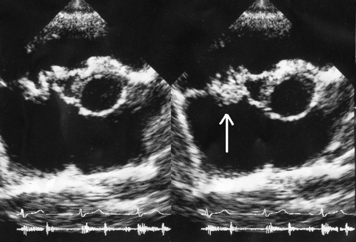 An endocarditis ultrasound; vegetation on tricuspid valve by echocardiography. Source: Boundless