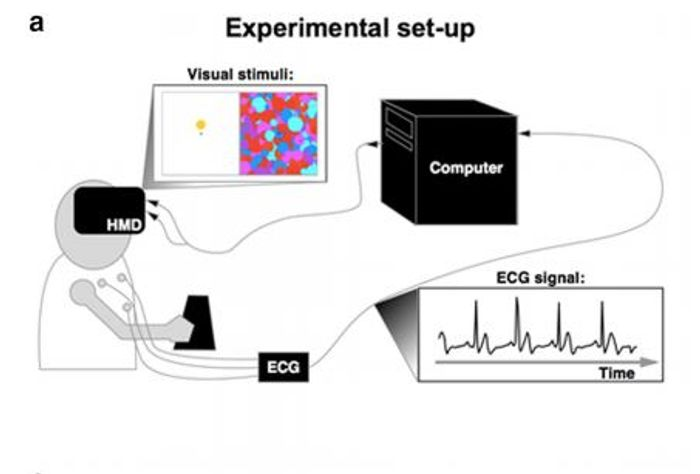 Experimental set-up for synchronizing the visual stimuli to the subject's heartbeat.