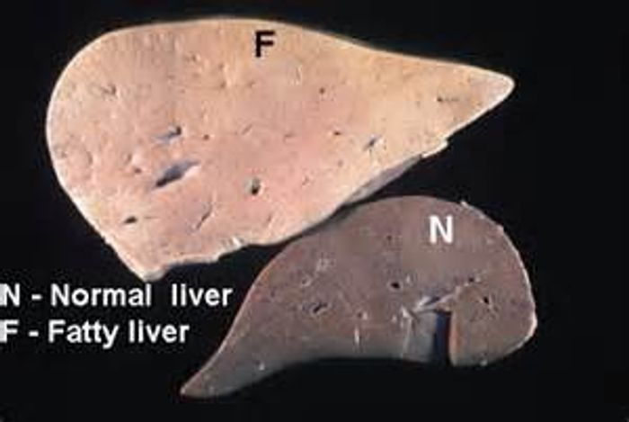 An example of a healthy liver compared with an enlarged fatty liver.