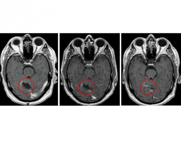 Brain scans from the study's glioblastoma trial.  Credit: Clinical Cancer Research/American Association for Cancer Research