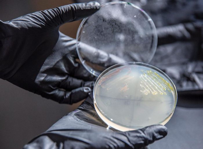 Dr. Alex Linz examines a plate streaked with N. aromaticivorans (in yellow), a soil bacterium that could turn a renewable source - lignin from plant cells - into a replacement for petroleum-based plastics. / Credit: Chelsea Mamott, GLBRC