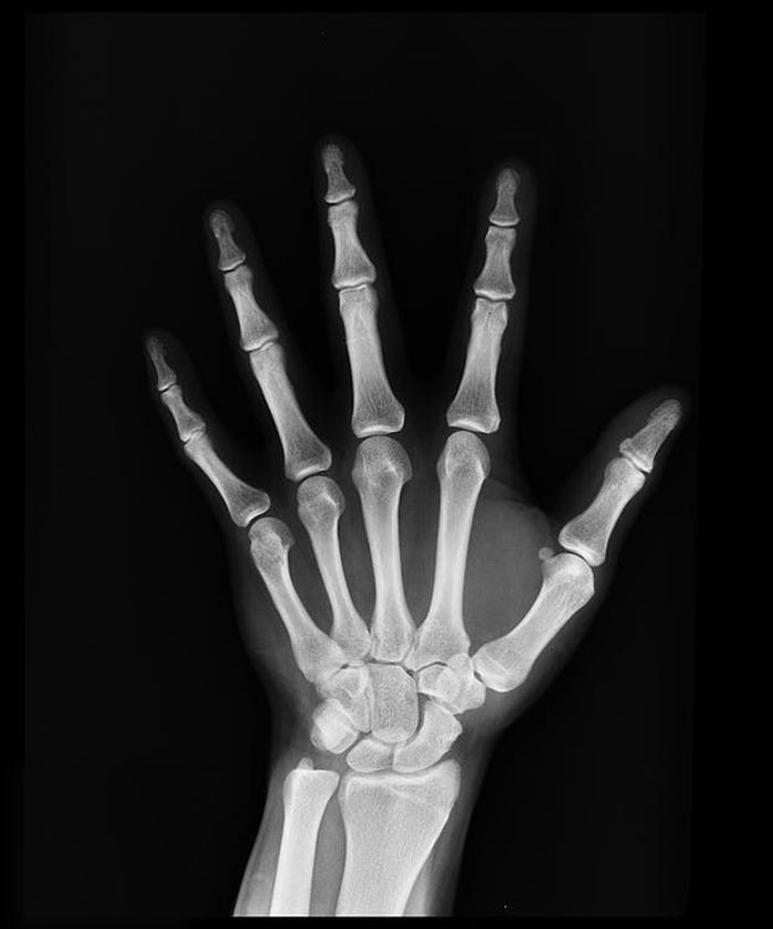 hand X-ray, credit: public domain