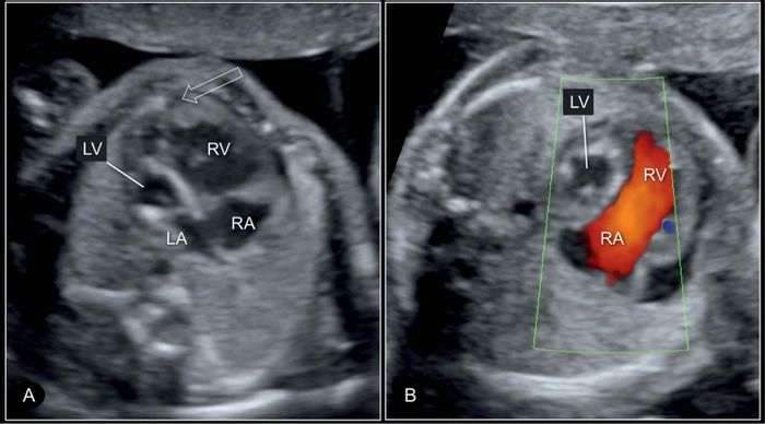 Four-chamber view of a hypoplastic left heart syndrome at 22 weeks' gestation in 2D (A) and color Doppler (B) imaging. Credit: Obgyn Key