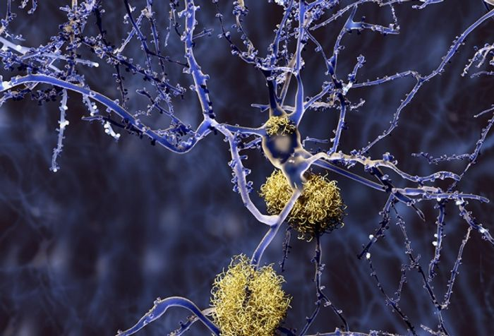 Amyloid plaque clumps (yellow) in the brain