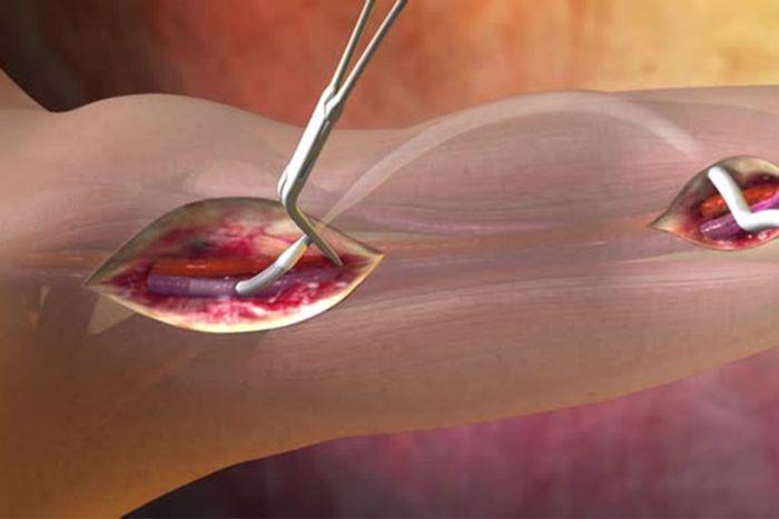 An animation of a vascular graft standard procedure. Source: Gore Medical