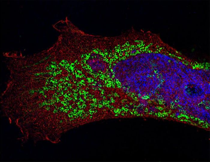 A human epithelial cell infected with H3N1 influenza A virus (in green). Red, LC3 (cytosolic protein); blue, DNA. Imaged by super-resolution structured illumination microscopy. 50 Z-stacked images. Credit: Maria T. Sanchez, Mount Sinai School of Medicine