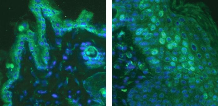 A fluorescence microscope image shows the skin of a healthy mouse (left) and skin from a mouse with a poison ivy rash (right). Interleukin-33, shown in green stain, is a protein that acts directly on the nerves, telling the brain the skin is extremely itchy. / Credit: Sven-Eric Jordt/Duke Health