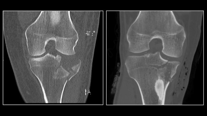 This is an ultra-low dose radiation CT scan of a fracture of the tibial plateau (left) compared to a conventional dose CT scan.