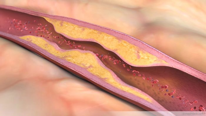 Plaque inhibiting flow of blood in a vessel