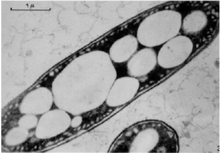 """TEM image of a bacteria cell that has PHBV polymer """"bubbles"""" (UNT Digital Library)"""