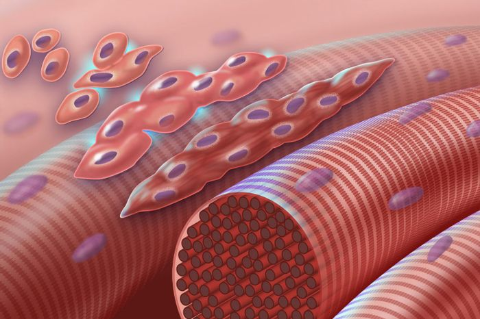 The graphic depicts normal myoblasts (early muscle cells with a single nucleus) fusing together to form muscle cells with more than one nucleus. The cascade is disrupted in Carey-Fineman-Ziter syndrome, because of a defect in the membrane protein, myomaker, which is required for cell-cell fusion / Credit: Darryl Leja, NHGRI
