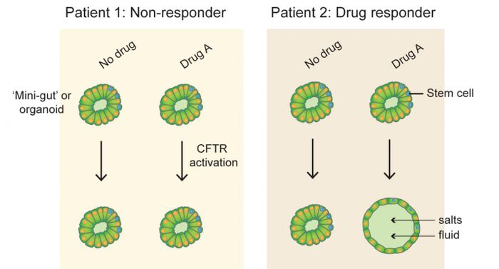 The response to CFTR-targeted drugs measured by swelling of intestinal organoids differs between subjects with cystic fibrosis. This material relates to a paper that appeared in the 22 June 2016, issue of Science Translational Medicine, published by AAAS. Image by Johanna Dekkers/University Medical Center Utrecht