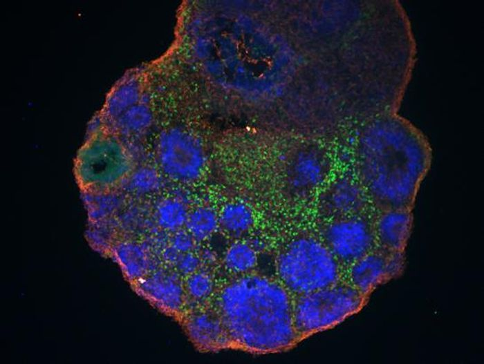 Studying lab-grown cerebral organoids (one derived from chimpanzee cells, shown) has helped scientists discover genes active only in developing human brains. / Credit: Vincent Meng and Andrew Field