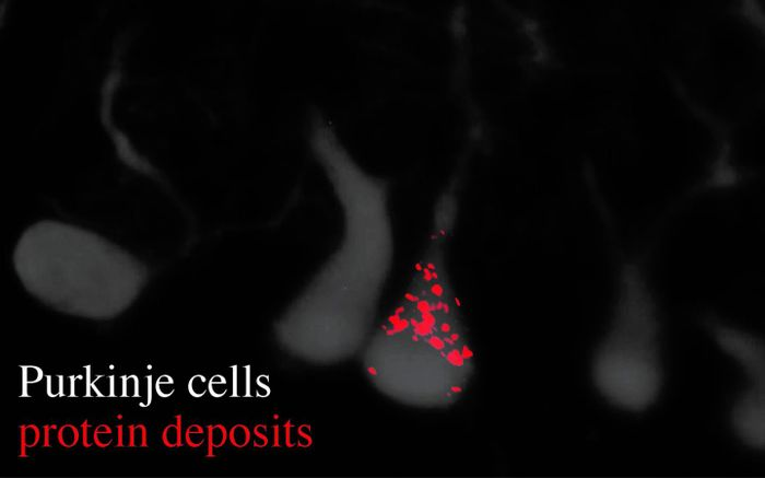 Image reveals Purkinje cells (gray) and their dendrites, as well as an accumulation of protein deposits (red dots). / Credit: Ackerman Lab/UC San Diego
