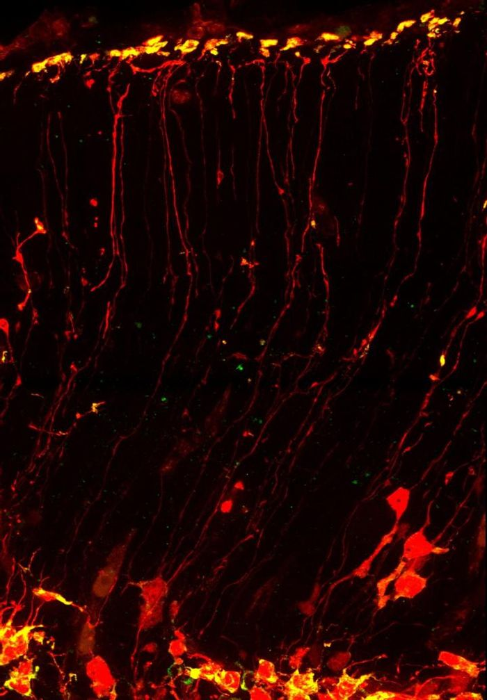 RNA (yellow) moves quickly toward the uppermost layer of the brain along the path of neural stem cells (red). Duke researchers visualized this phenomenon in living cells, and found that a protein implicated in Fragile X syndrome is important to this RNA transit system. / Credit: Louis-Jan Pilaz, Duke University
