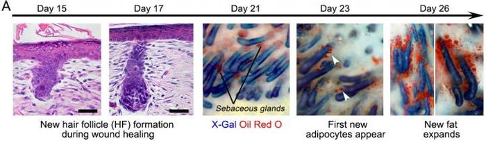 The progression of the wound during healing when hair follicles are present. / Credit: Penn Medicine