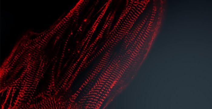 Fully functional hiPSC-derived cardiomyocytes. Credit: Pluriomics