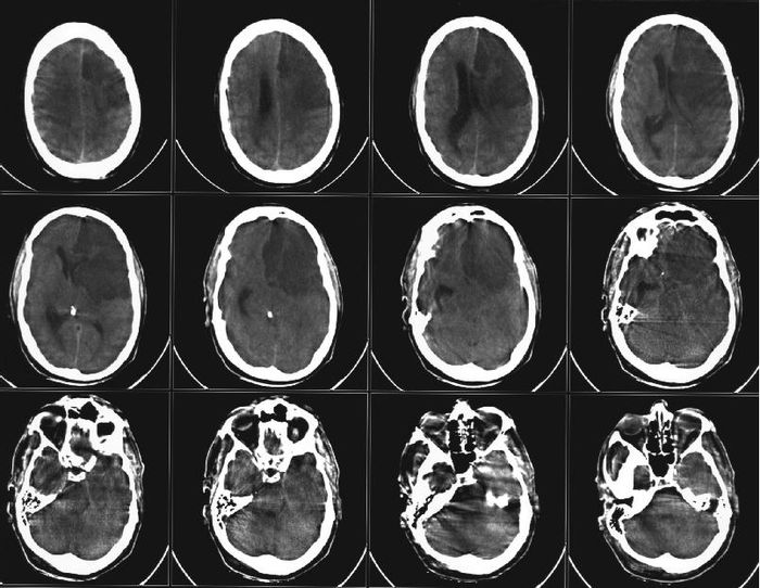 CT scan of a stroke. The patient died a short time after due to brain tissue death and swelling.