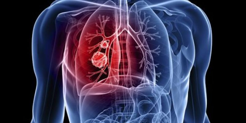 Global Tuberculosis (TB) Detection Market 2020 Industry Dynamics – Danaher,  Creative Diagnostics, Roche, Abbott, Oxford Immunotec International – The  Daily Chronicle